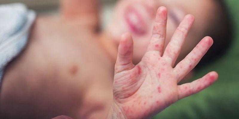 Медики забили на сполох: в Україні можуть спалахнути три смертельні інфекції