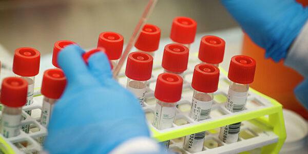 В Україні 20580 лабораторно підтверджених випадків COVID-19, з них 605 летальних, 6929 пацієнтів одужало