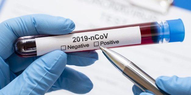 За добу зафіксовано 339 нових випадків COVID-19